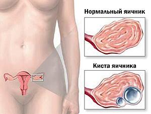 women-health-05